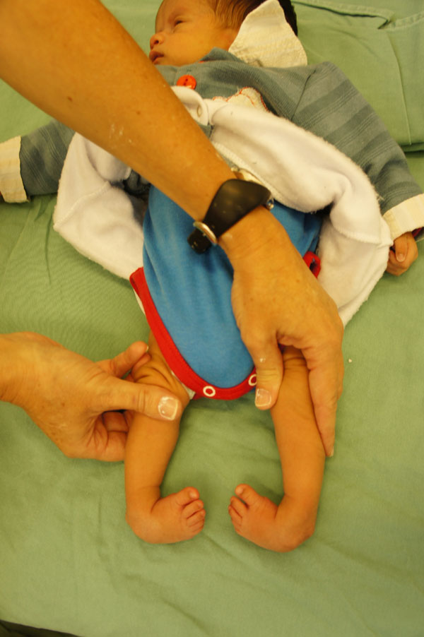 Clubfoot causes a deformity of the foot in which patients' ankles appear to have been  rotated inward